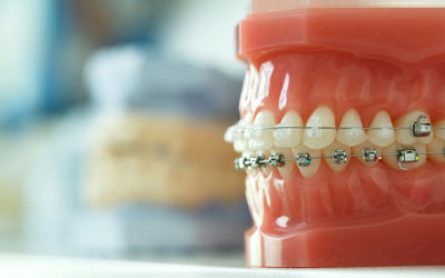 Braces on a tooth and jaw model