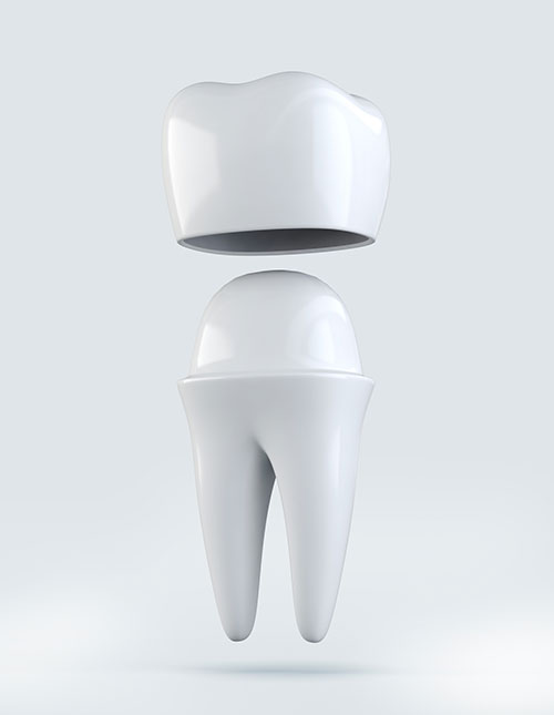3D illustration of Crown tooth on white background