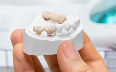 Dental model showing example of bridges